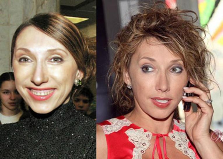 пластика у российских звезд до и после фото