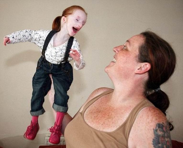 смотреть карлик с большим хуем выебал юнную девочку