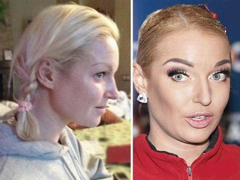 Российские знаменитости без макияжа фото 16