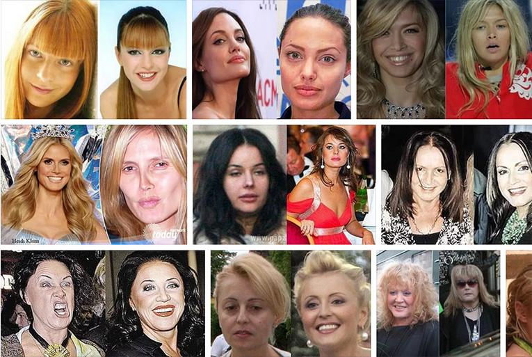 Российские знаменитости без макияжа